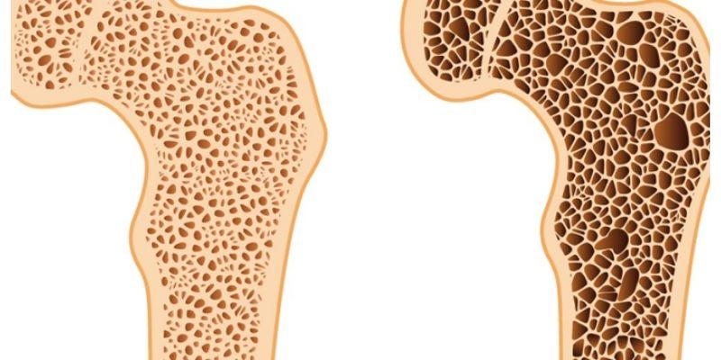 comparaison d'un os sains avec un os poreux atteint d'ostéoporose